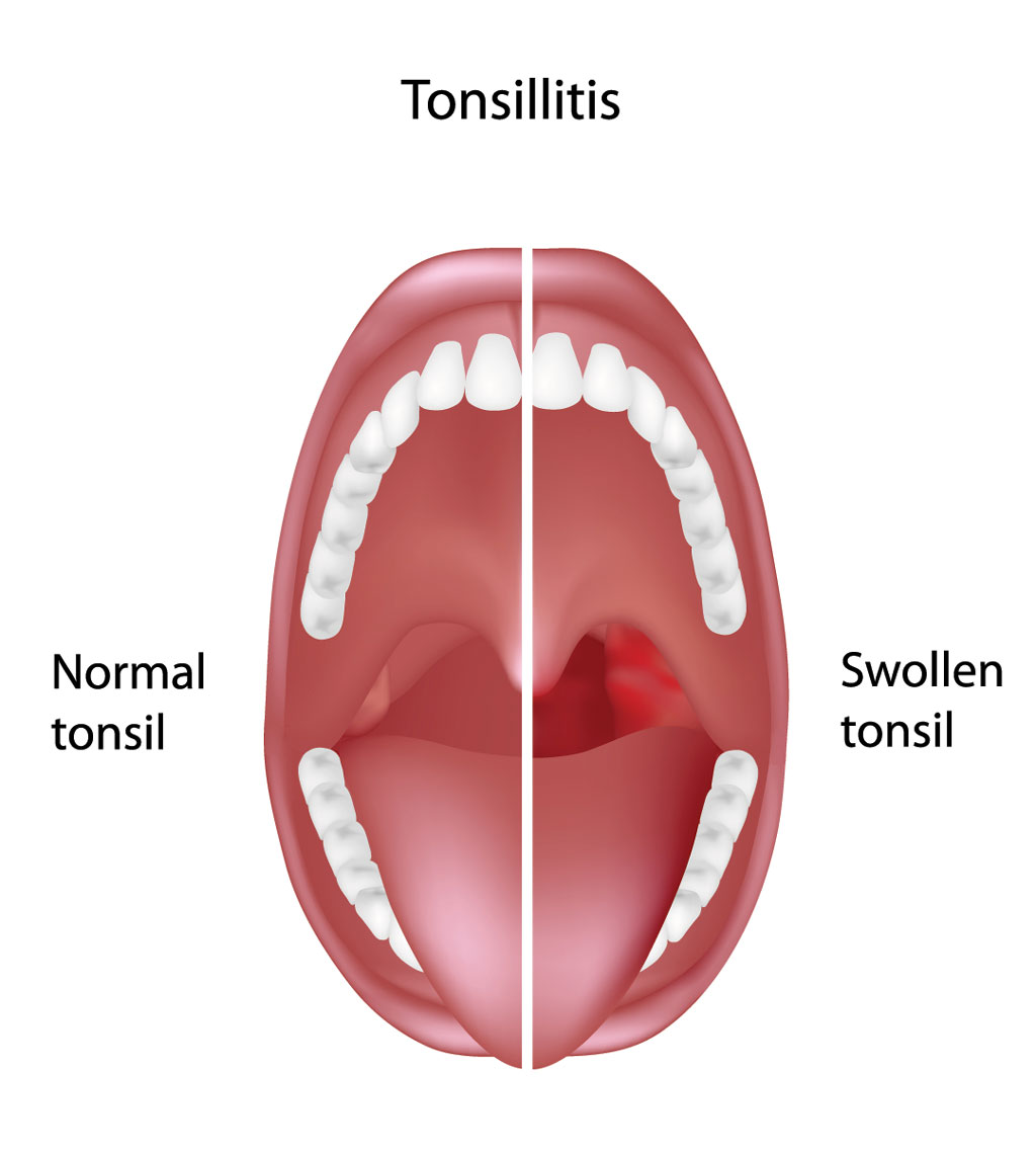 enlarged tonsils in adults