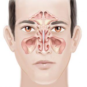 nasal polyps causing sinusitis