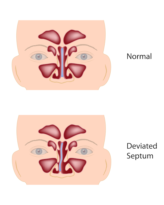 A nasal septoplasty to correct a deviated septum is a procedure commonly performed by Ear, Nose, and Throat specialists.