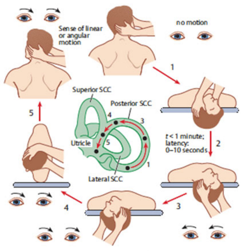 "Canalith Repositioning Procedure, also known as the ""Epley maneuver"""