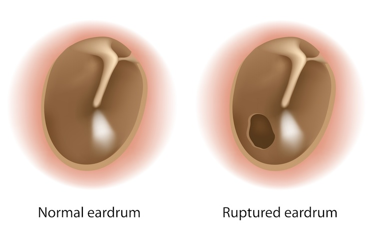 eardrum rupture otolaryngology specialists of north. Black Bedroom Furniture Sets. Home Design Ideas