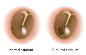 eardrum rupture