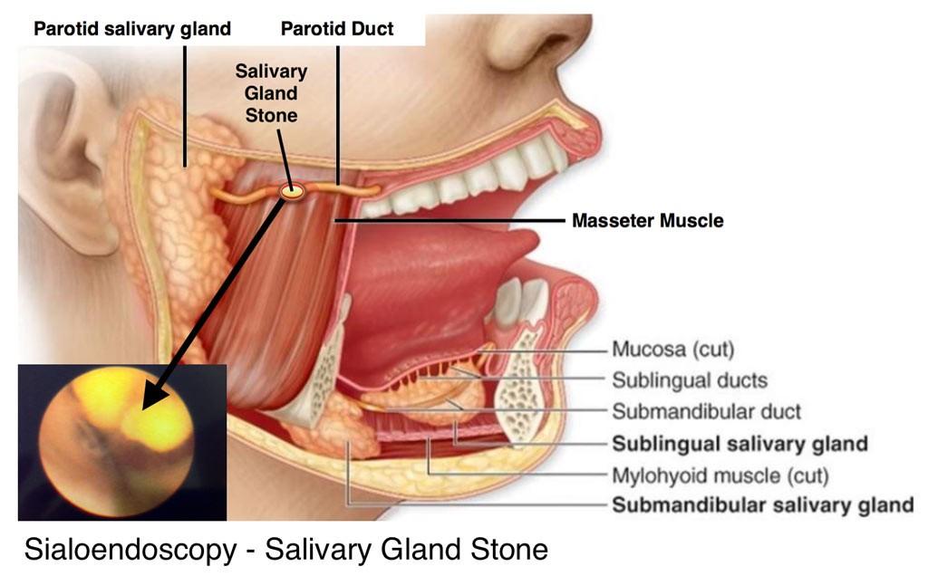Minimally Invasive Salivary Gland Surgery – Dr. Rohn, Dr. Gamble