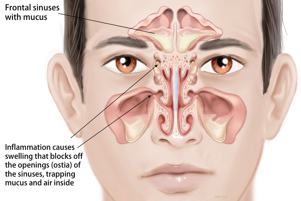 sinus-infection-