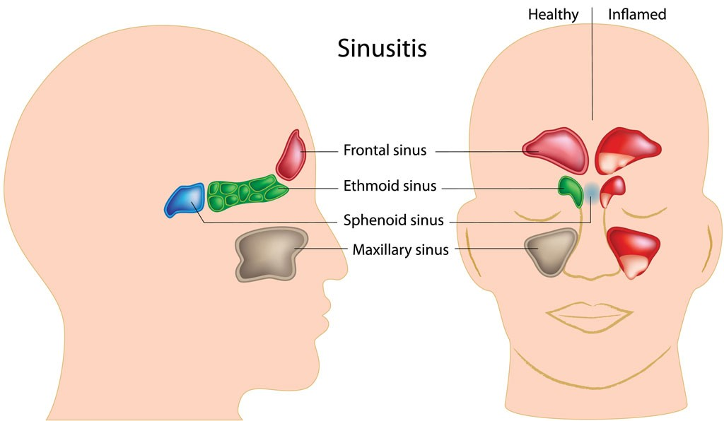 Sinusitis and Allergies
