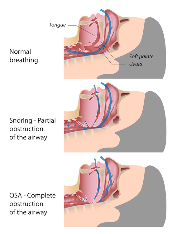 snoring sleep apnea Dr Rohn and Dr Gamble