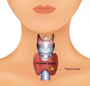 thyroid mass cancer