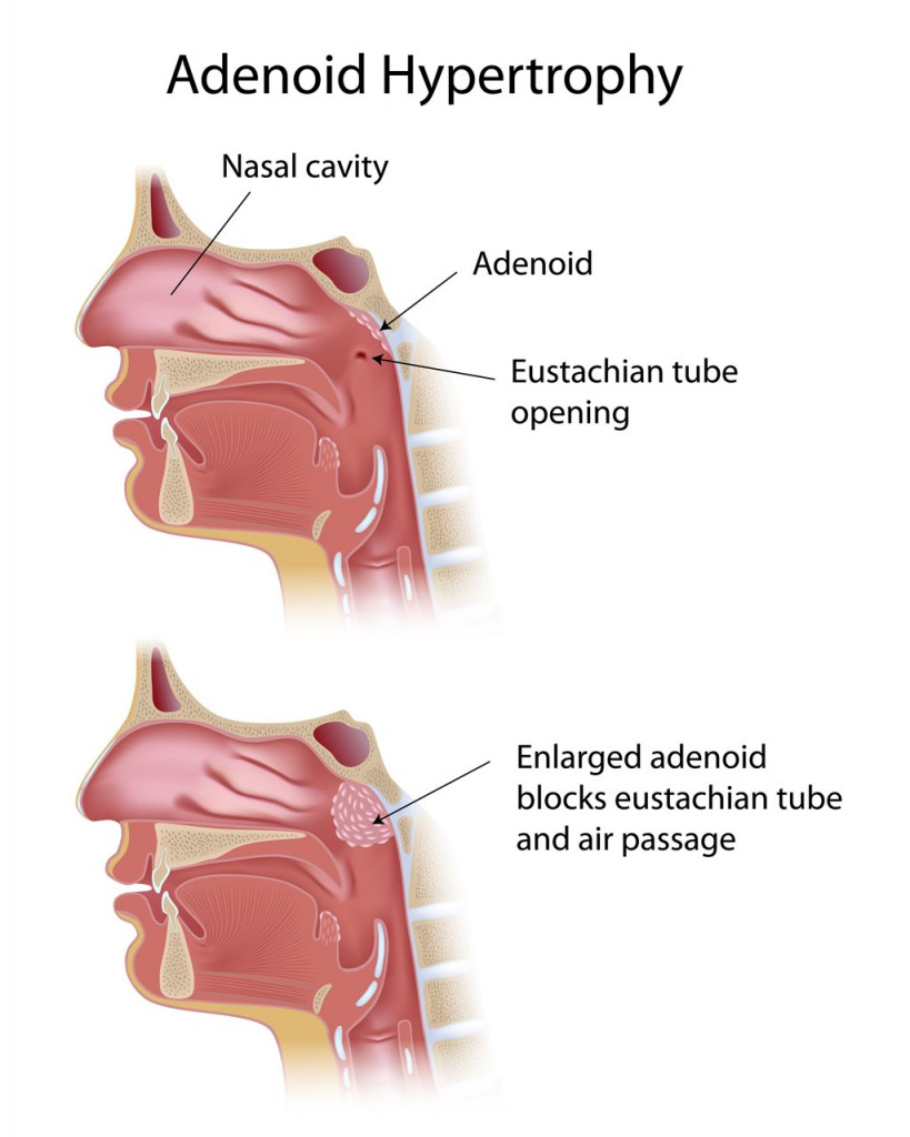 adenoid, adenoid enlargement, adenoidectomy