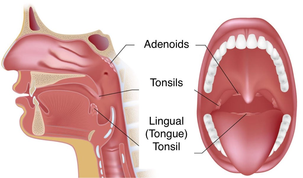 palatine tonsil and lingual tonsils for tonsillectomy