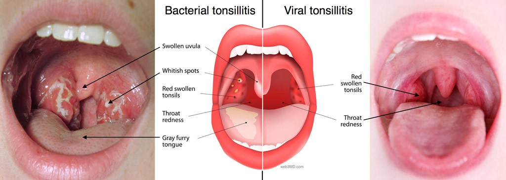 Tonsils, tonsillectomy, adenoidectomy due to bacterial or viral infection