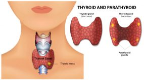 Plano Dallas OSNT Thyroid Surgery (Thyroidectomy) surgical removal of thyroid gland